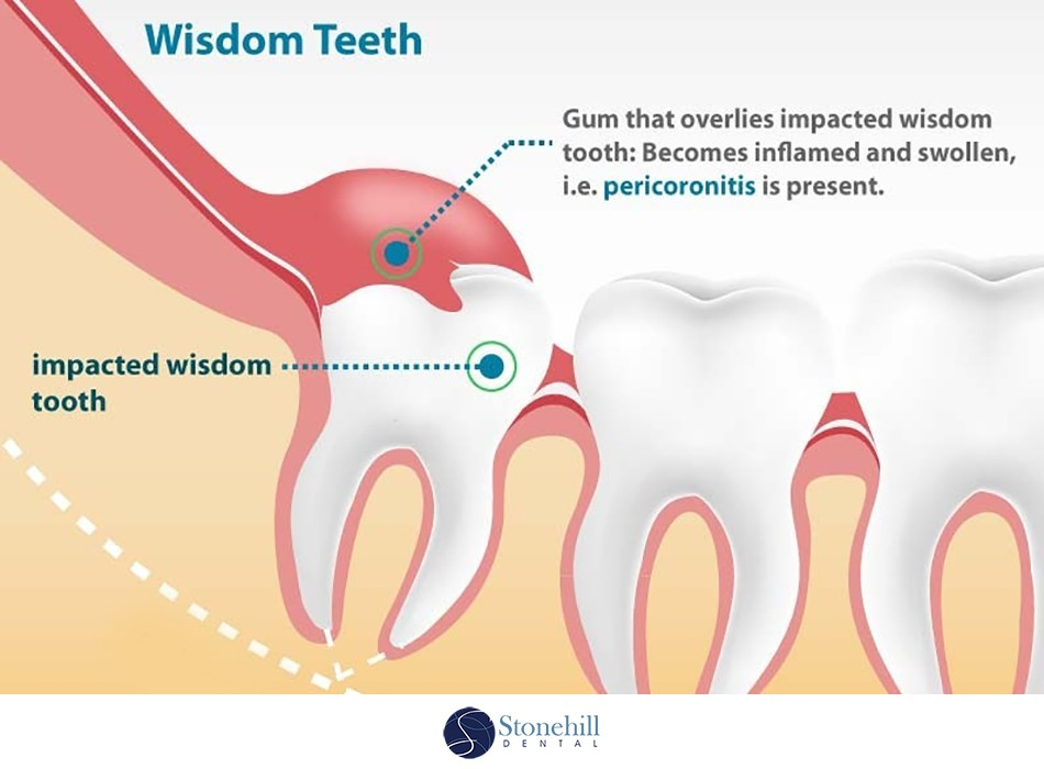 Impacted Wisdom Teeth Stonehill Dental Hamilton Dentist