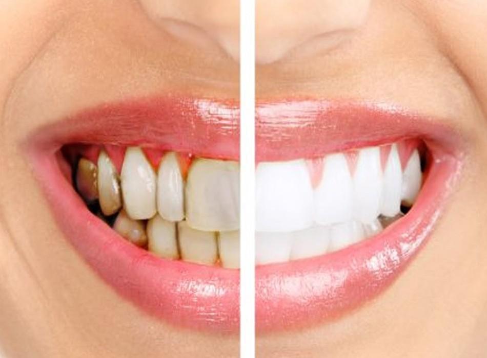 What Is Gingivitis Stonehill Dental Hamilton Dentist
